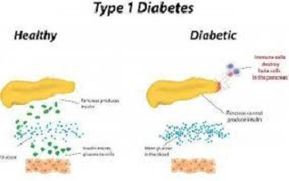 Type 1 diabetes treatment
