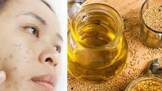 is mustard oil good for your skin